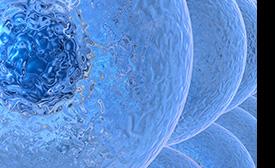 Non-Metastatic Esophageal Adenocarcinoma : Circulating Tumor Cells in the Course of Multimodal Tumor Treatment
